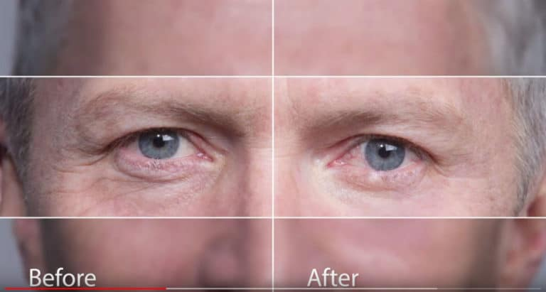 Before and After Instantly Ageless